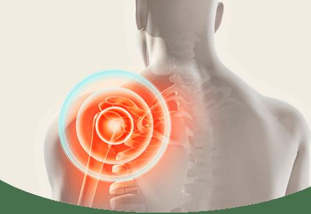 symptoms of torn rotator cuff in shoulder