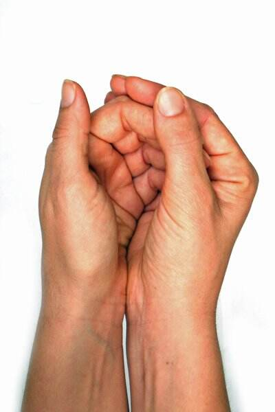 The Difference between Arthritis and Carpal Tunnel