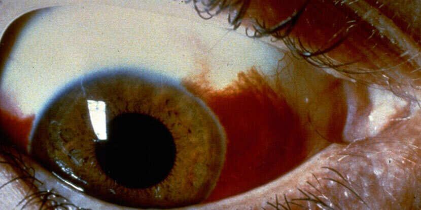 subconjunctival hemorrhage red eye