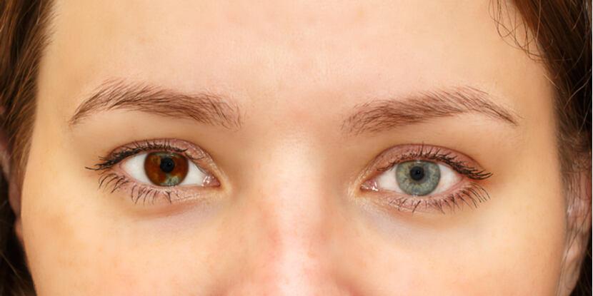 oftalmologie heterochromie)