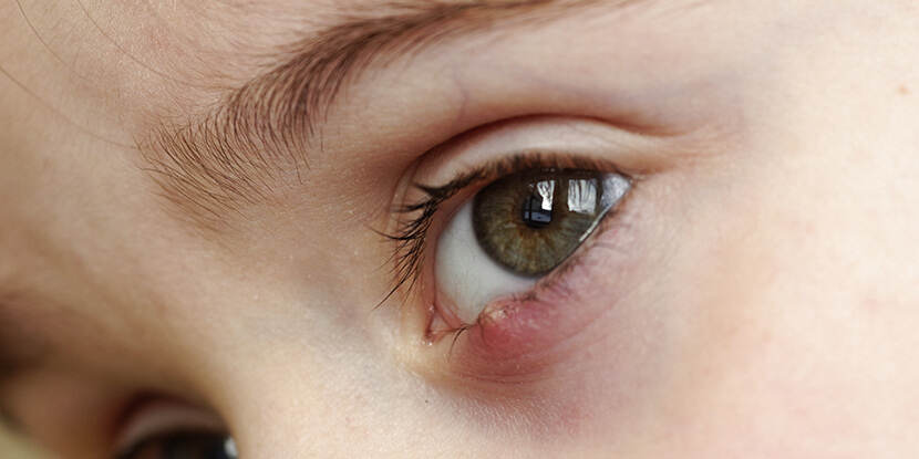 What Are Styes And Chalazia American