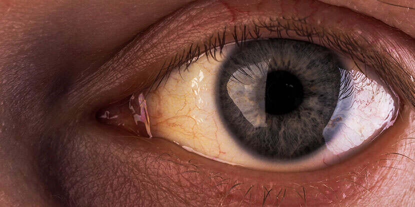 Why Are The Whites Of My Eyes Discolored American Academy Of Ophthalmology