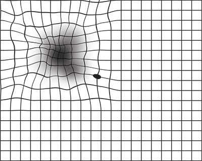 La cuadrícula de Amsler muestra la distorsión de las líneas en la cuadrícula que uno podría ver con AMD