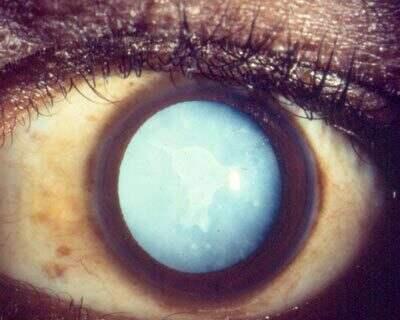 Mature Cataract