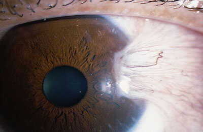 Photograph of a pterygium (surfer's eye), a fleshy growth on the eye