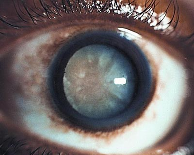 A cataract - cloudy lens behind the pupil - seen in an adult eye.