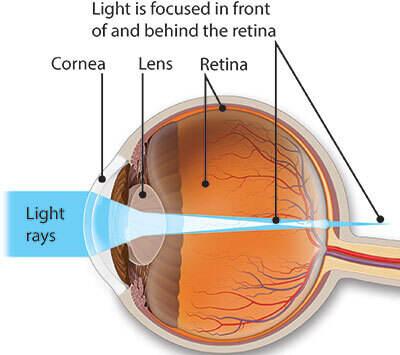 Simptome, tratament și corectarea astigmatismului la copii