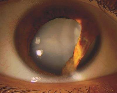 Traumatic cataract after a paintball injury.