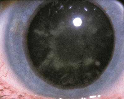 """Diabetic cataract, or """"snowflake"""" cataract seen, in rare cases, in patients with uncontrolled diabetes mellitus."""