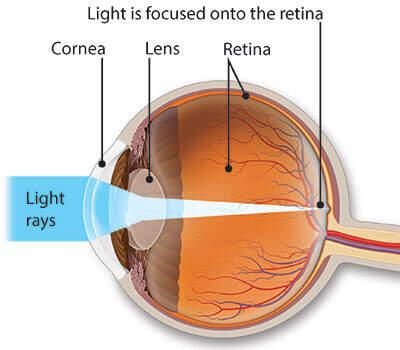 myopia hyperopia asztigmatizmus az)