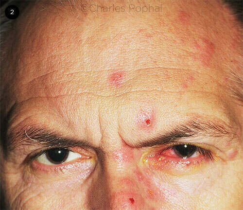 Herpes Zoster Ophthalmicus - American Academy of Ophthalmology