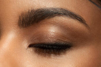 What you need to know about swollen eyelids
