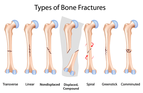 types-of-bone-fracture.png