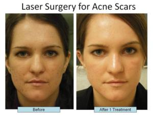 Acne Scar Treatments Nyc Schweiger Dermatology