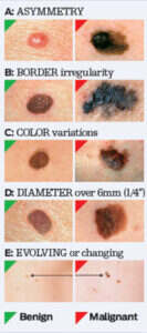 Types Of Skin Cancer Schweiger Dermatology Group Nyc Nj