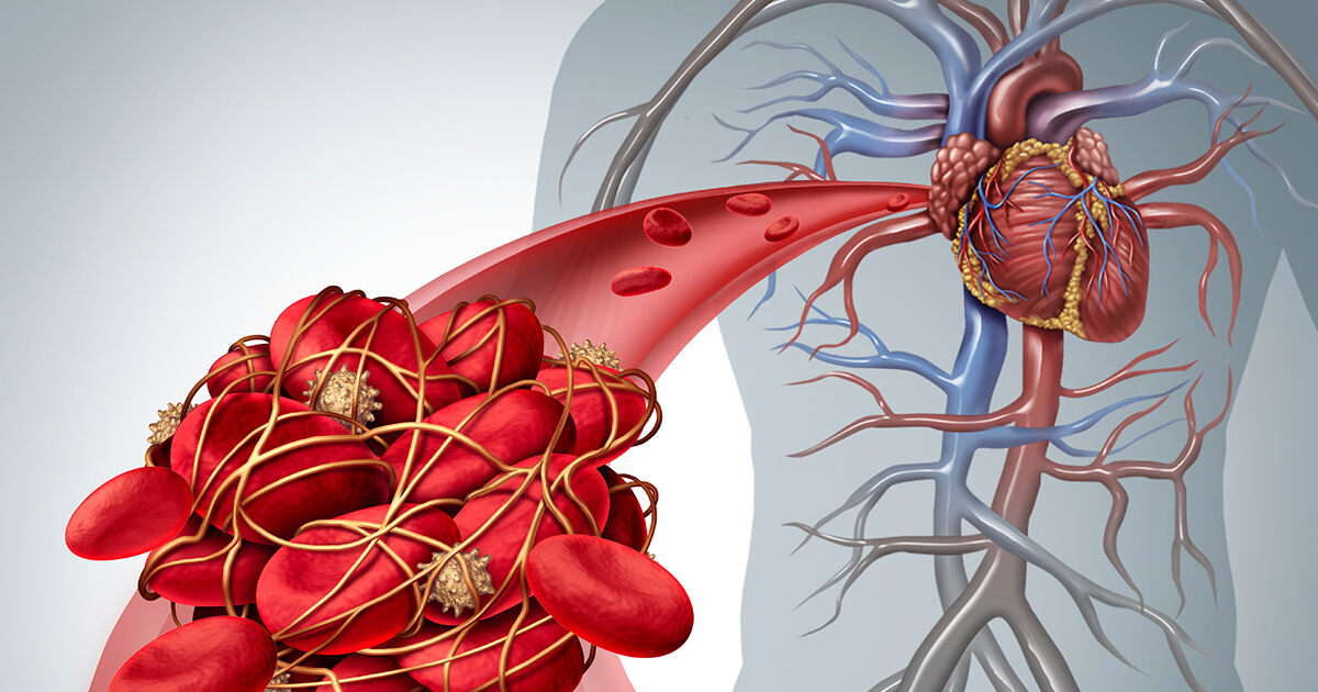 Diabetes and Blood Clots | Guadalupe Regional Medical Center