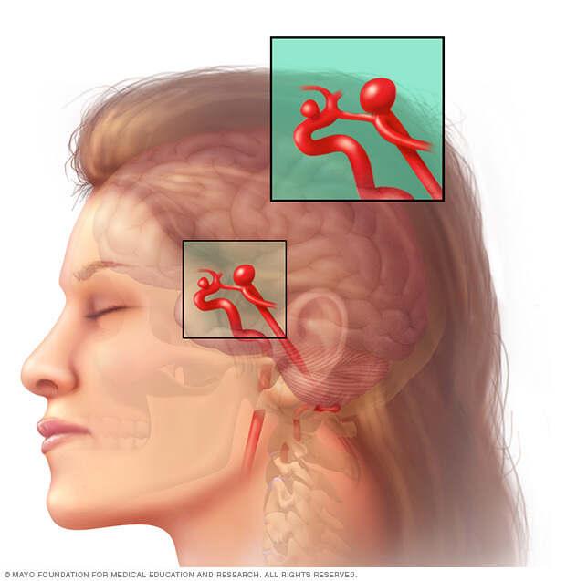 Brain Aneurysm Beacon Health System