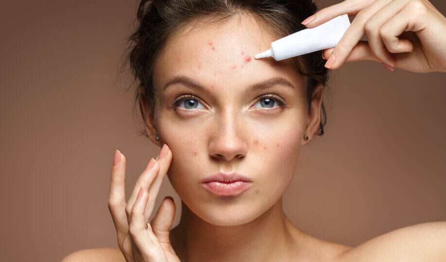 Rid acne to quickest way of get the How to